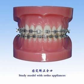 牙齿正畸 牙齿正畸价格 牙齿正畸后遗症